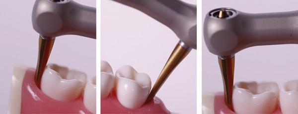 Periotomklinge LX3S, kurz, 3 mm